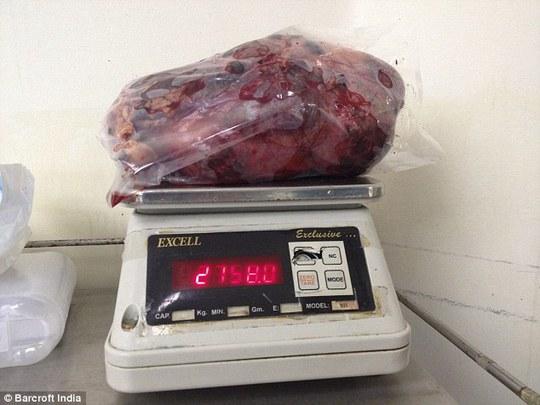 Cắt bỏ quả thận lớn nhất thế giới nặng gần 3 kg