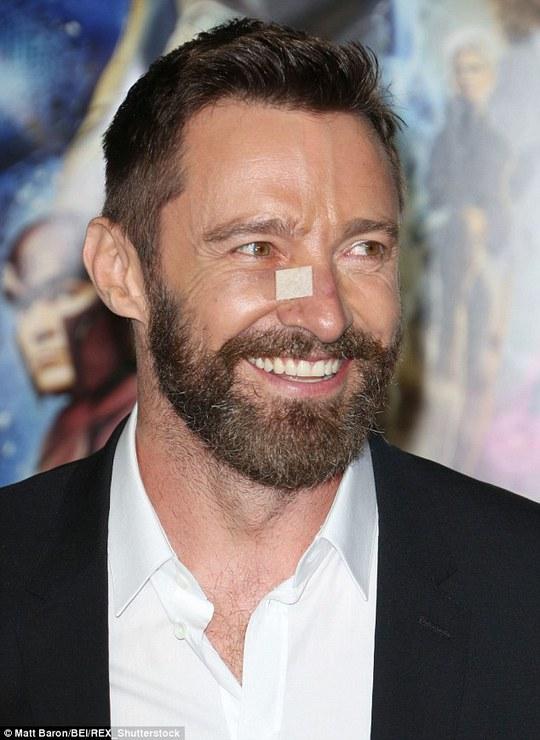 Hugh Jackman nhiều lần tiểu phẫu vì ung thư da