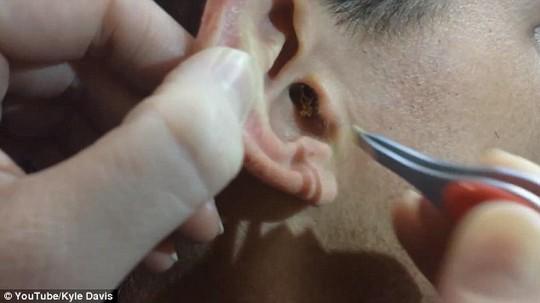 Lấy khối ráy bằng cây nến nhỏ trong tai người đàn ông