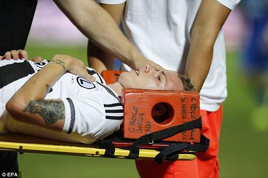 Duda của Legia bị ném đá trúng đầu