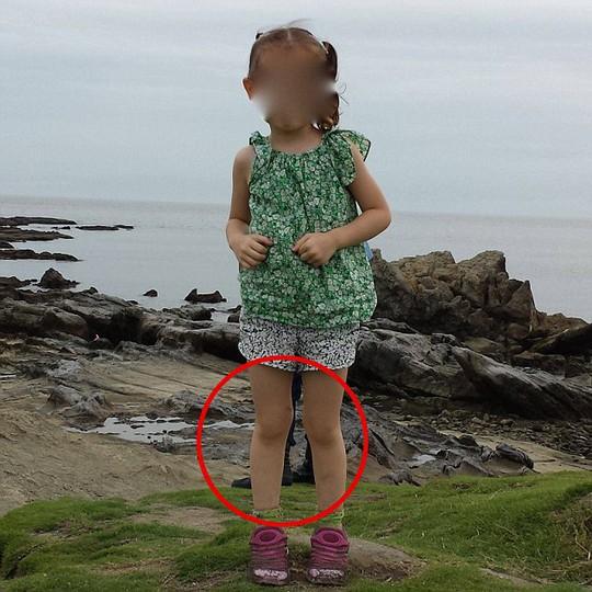 Đôi giày đen bí ẩn và một mảnh áo màu xanh phía sau chân và lưng con gái ông Springall (khoanh đỏ). Ảnh: Daily Mail
