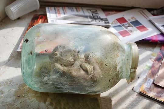 Lọ chứa xác ướp, xương cùng nội tạng. Ảnh: Daily Mail