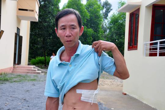 Ngư dân Võ Văn Đạo bị gãy 3 xương sườn do lúc tàu gặp nạn va vào. Ảnh: Tử Trực