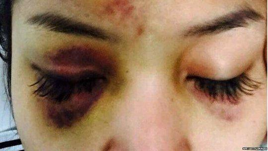 Vết bầm tím trên mặt của SaSa sau khi bị hành hung