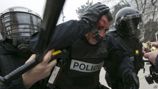 Một cảnh sát chống bạo động bị thương. Ảnh: AP