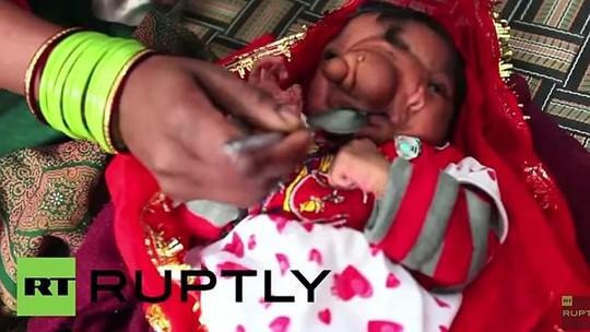Bé gái sinh ra với vòi voi trên mặt