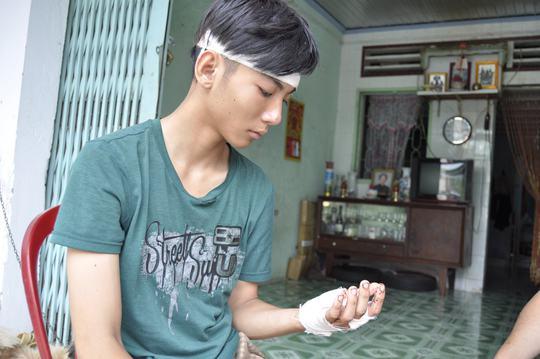 Nạn nhân Quang bị chem vào đầu và tay đang được điều trị