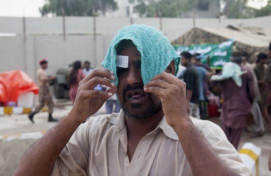 Một người trùm khăn ướt lên đầu để hạ nhiệt. Ảnh: AP
