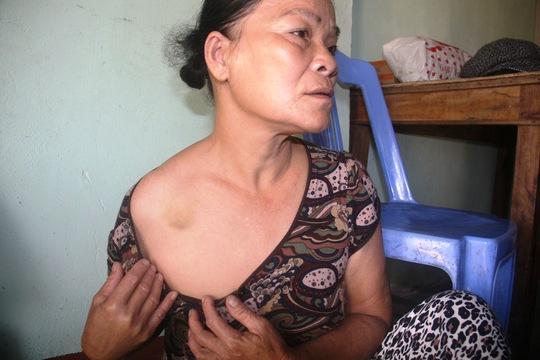 """Bà Thảo khẳng định vết bầm trên ngực do nhóm """"giang hồ"""" gây ra lúc 2 bên giằng co"""