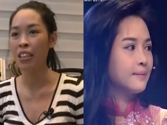 Quỳnh trước và sau khi phẫu thuật. Ảnh từ video clip