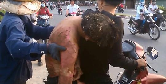 Nạn nhân được người dân chở đi bằng xe máy đến bệnh viện Bưu điện quận 2, sau đó anh được chuyển lên Bệnh viện Chợ Rẫy để tiếp tục điều trị