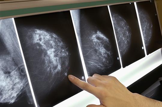 Phụ nữ mô ngực dày chụp nhũ ảnh khó hơn