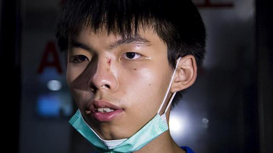 Những vết thương trên mặt Joshua Wong... Ảnh: Reuters