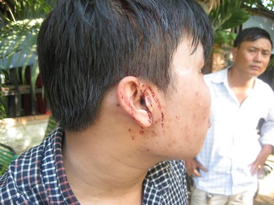 Vết thương chảy nhiều máu trên đầu PV Linh Hoàng do nhóm đối tượng gây ra
