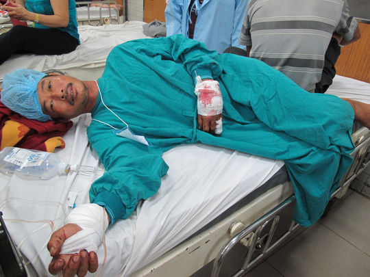 Nạn nhân nhập viện trong tình trạng bị thương nặng 2 bàn tay