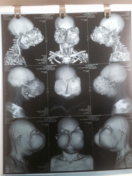 Hình ảnh chụp cắt lớp vi tính khối u khổng lồ của bệnh nhân