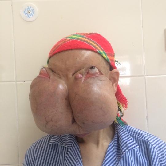 Bệnh nhân Lý Mùi Xiên đang được chăm sóc tại BV K Trung ưng, xã Tân Triều, Hà Nội