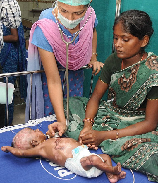 Ms Rajeswari (right), 22, claimed in 2013 that her other son Rahul had also spontaneously combusted