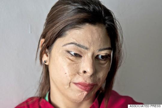 Chị Kanwal Asher, 24 tuổi