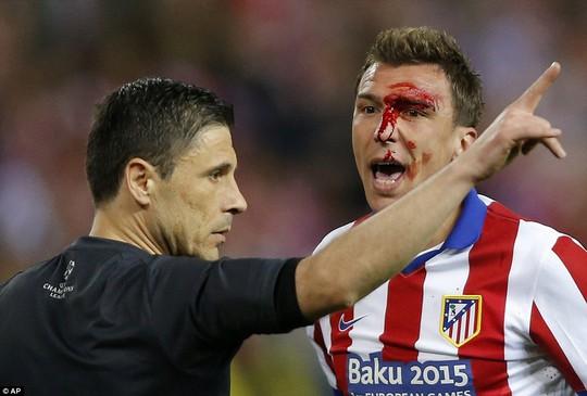 Máu đổ trên mặt Mandzukic sau pha tranh chấp với Ramos