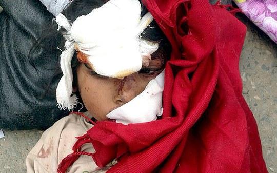 Một em bé bị thương ở Kathmandu. Ảnh; AP