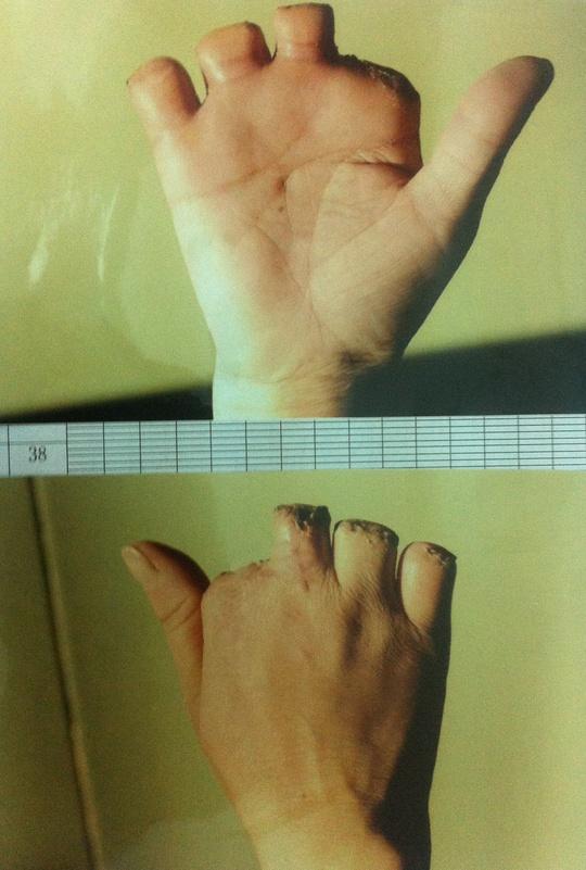 Bàn tay chị N. bị máy nghiến sạch 4 ngón