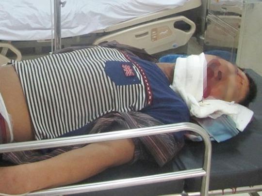 Một công nhân bị thương nặng trong vụ sập giàn giáo tại dự án Formosa ngày 27-7-2014 được cấp cứu tại bênh viện. Ảnh: Dũng Nguyên