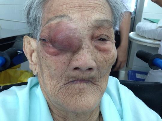 Cụ bà bị khối u đẩy lồi mắt phải ra ngoài.