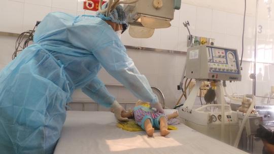 Công tác điều trị bệnh nhi nhiễm MERS-CoV đã sẵn sàng Ảnh: NGUYỄN THẠNH