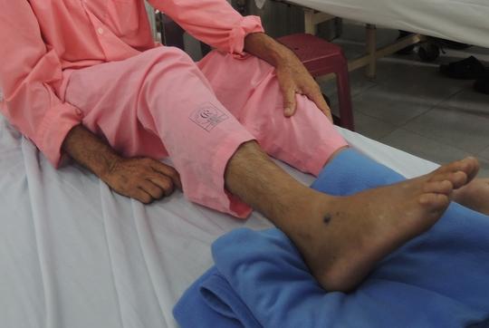 Bệnh nhân bị rắn cắn đang điều trị tại Bệnh viện Chợ Rẫy