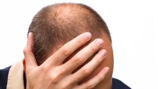 Hói đầu có thể liên quan đến ung thư tuyến tiền liệt và tăng nguy cơ tử vong do bệnh này. Ảnh: Fox News