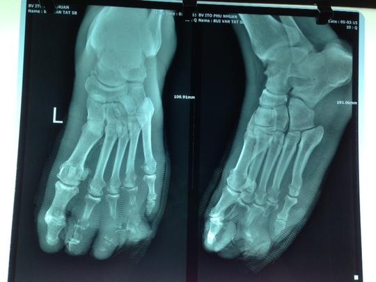 Bàn chân bệnh nhân đã hoại tử các ngón 2,3,4 do nhiễm trùng.