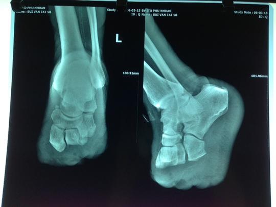 Chỉ vì chủ quan, bệnh nhân phải chịu cảnh tháo khớp bàn chân.