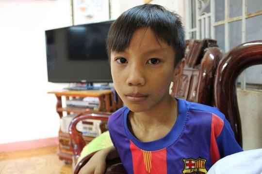 Mái tóc em Trương Bá Quý một ngày sau khi bị cô Hương cắt - Ảnh: Nhất Nguyên