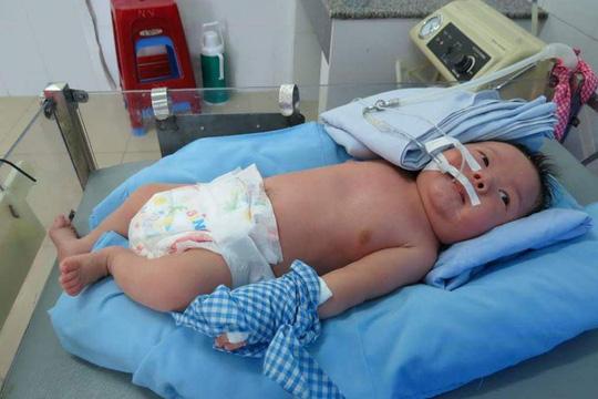 Cháu bé mắc bệnh hiểm nghèo từ khi ra đời còn chịu sự thiệt thòi vì thiếu vòng tay chăm sóc của cha mẹ