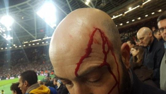 Một CĐV Chelsea bị đổ máu đầu