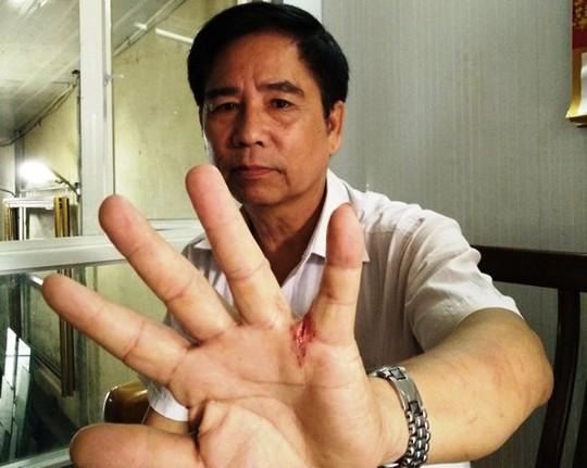 Ông Nguyễn Văn Định với vết thương ở tay khi xông vào vật nhau với tên trộm táo tợn đế cứu vợ con