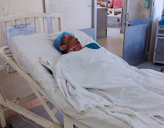 Một phụ nữ sống tại thị xã Dĩ An, tỉnh Bình Dương bị người tình dùng xăng đốtẢnh: Anh Vượng