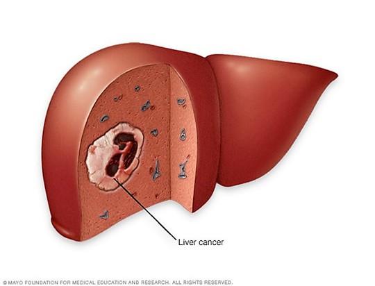 Minh họa khối u ung thư gan Ảnh: MAYO CLINIC
