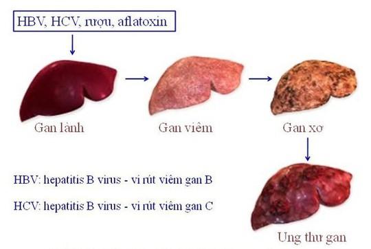 Tiến trình ung thư gan.