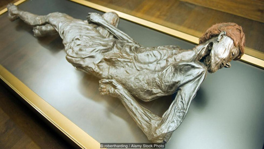 Xác người đàn ông bị cắt cổ họng ở Bảo tàng Moesgaard Ảnh: ALAMY STOCK
