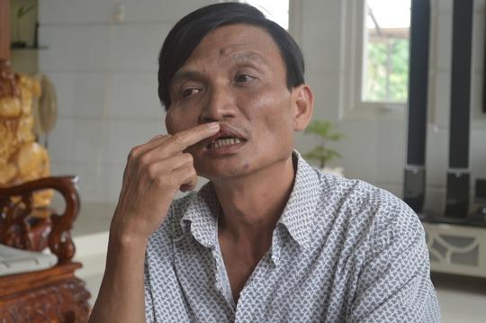 Đến chiều 20-10 sau khi uống thuốc, gò má và môi ông Hưng đã bớt sưng