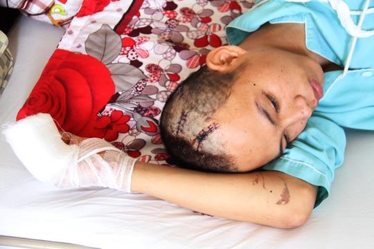 Em Nguyễn Văn Hạnh (16 tuổi) bị chém trọng thương ở đầu, ngón tay đứt lìa