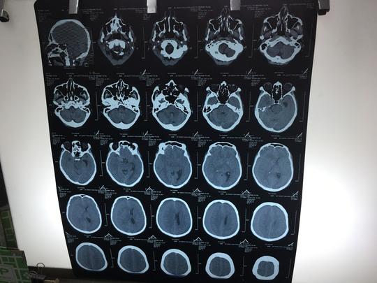 Bệnh nhân bị chấn thương sọ não mà không biết.
