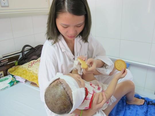 Bé gái 2 tuổi bị lột gần như toàn bộ da đầu sau tai nạn