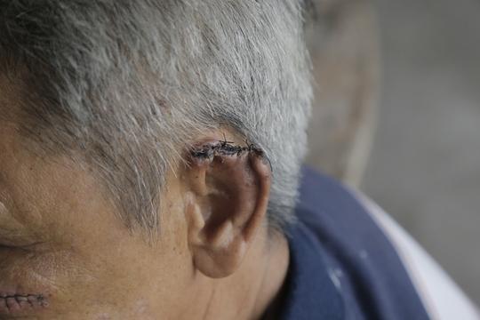 Ông Hùng bị chém đứt tai và bị thương ở mặt