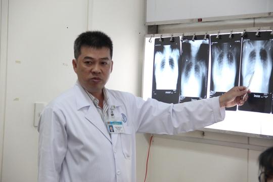 Lần đầu tiên các bác sĩ Bệnh viện Chợ Rẫy gặp phải ca bệnh lạ này.