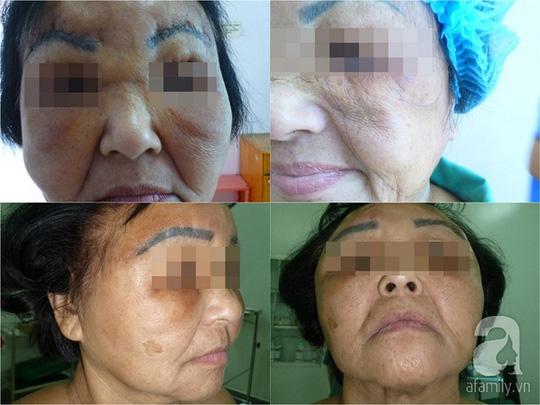Sau nhiều năm, nhiều phụ nữ chịu biến dạng khuôn mặt vì silicon lỏng.
