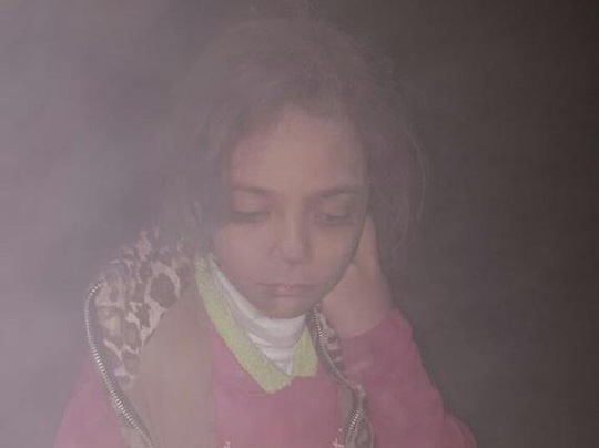Bức ảnh cho thấy bụi bám đầy người cô bé Bana. Ảnh: TWITTER