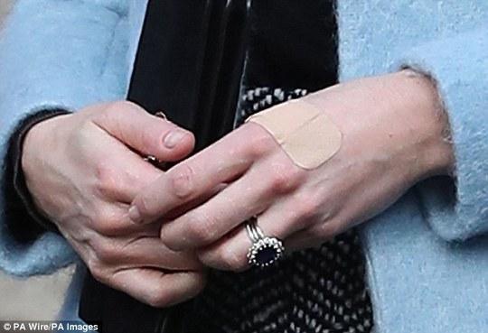Hình ảnh khác cho thấy công nương lại bị thương ở tay. Ảnh: PA